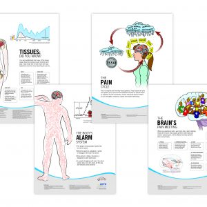 Pain Neuroscience Posters