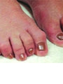 Hammertoe: A Case of Postural Distortions