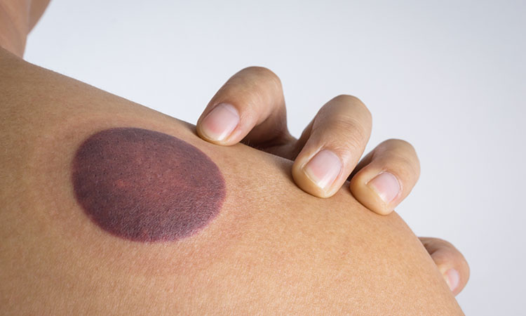Sports massage cupping is done by creating a vacuum to lift the tissue, thereby bringing blood and lymph to the area while enhancing the body's natural fluid exchange processes.