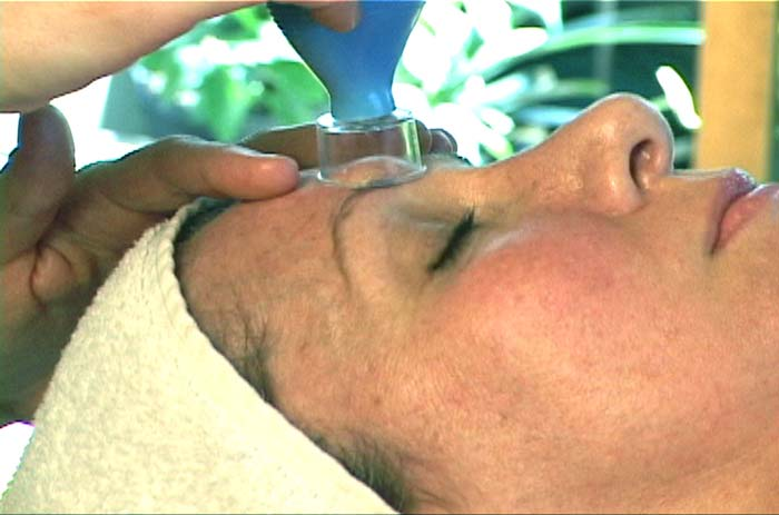 cupping therapy face drainage